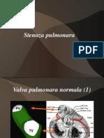 STENOZA PULMONARA