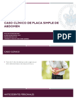 Caso Clínico de Placa Simple de Abdomen