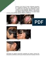 Estudios de Caso Colagenopatías-1501194428