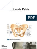 Fx Pelvis