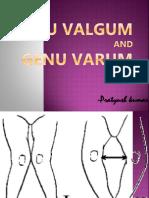 Docslide.net Genu Valgum
