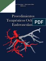Procedimientos Terapeuticos Oclusivos Endovasculares