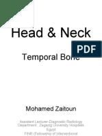 temporalbone-151227031114