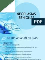 neoplasias benignas.ppt