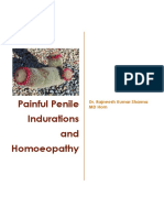 Painful Penile Induration and Homoeopathy