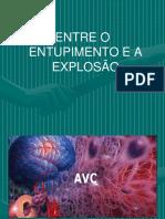 AVC ISQUÊMICO E HEMORRÁGICO - 0603.ppt