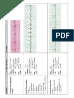 EKG Flash Cards.pdf