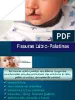 Fissuras Lábio Palatinasoficial Turma