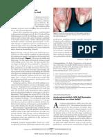 Acrokeratoelastoidosis With Nail Dystrophy