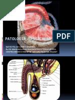 Patología testicular III