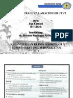 Sacral Extradural Arachnoid Cyst