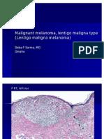 Malignant Melanoma, Lentigo Maligna Type.,F 87, Left Ear.