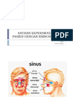 Askep Kmb Sinusitis