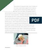 Failure Analysis of Composite Insulators