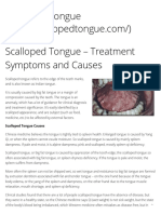 Scalloped Tongue – Treatment Symptoms and Causes – Scalloped Tongue