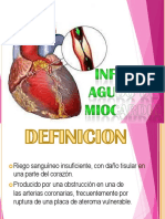 Presentación Infartoagudodemiocardio 1(1)