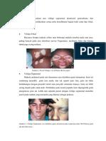 Klasifikasi Vitiligo