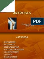 artrosis-1227044245724667-9