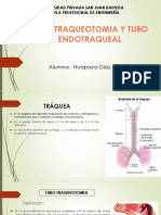 Traqueotomia Pdf