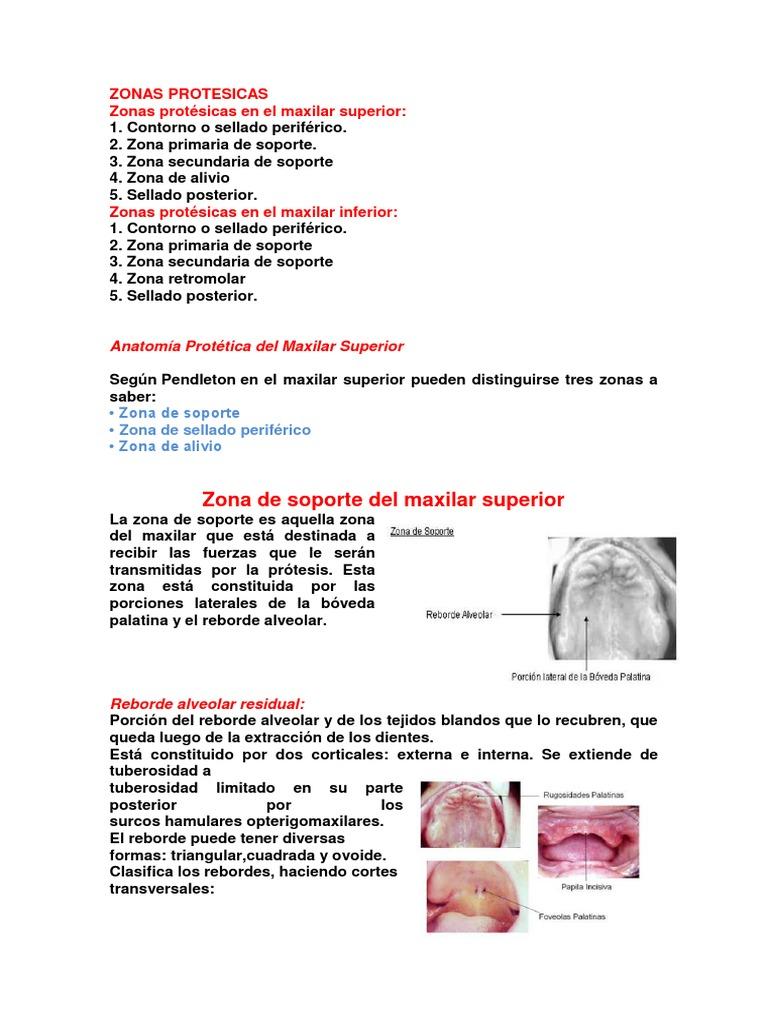 zonas protesicas de la protesis removible
