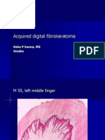 Acquired Digital Fibrokeratoma.  M 55, Left Middle Finger.