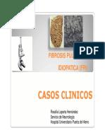 Laporta R - Fibrosis Pulmonar Idiopatica - Primavera SEAP 2016