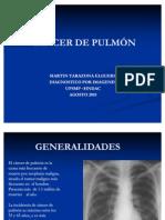 Neoplasia Maligna de Pulmon
