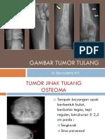 Gbr Bimb Tumor Tulang