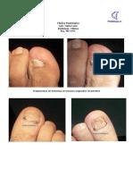 TratamientosPodologicos.pdf