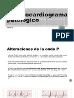 ECG Patologico IV (1)