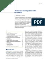 02 - Prótesis Unicompartimental de Rodilla