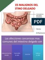 TUMORES MALIGNOS INTESTINO DELGADO