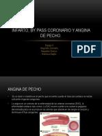 INFARTO, By Pass Coronario y Angina De