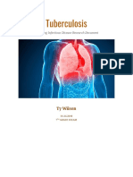 ty wilson tuberculosis