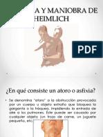 Asfixia y Maniobra de Heilminch