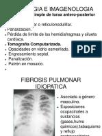 Sindromes intersticiales imagenologia