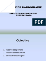 Aspecte Rodiologice in Tbc