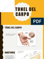 Sx de túnel de carpo