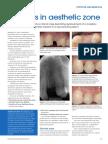 Implants in Aesthetic Zone