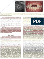 Guided Transplantation Teeth