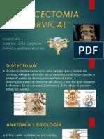 Discectomia Cervical