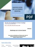 Radiología de Caries Dental