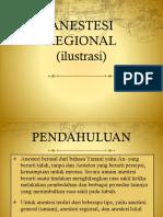 Ilustrasi Anestesi Regional dr. BW    Sp. An (5).pptx