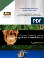 2.- Complicaciones de La Cirugia Dentoalveolar