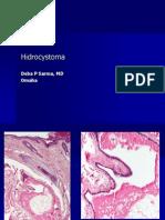 Hidrocystoma.