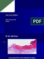 Verruca Plana, M 34, Left Foot. PPT