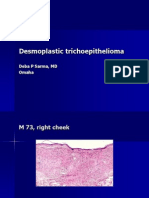 Desmoplastic Trichoepithelioma.  M 72, Right Cheek