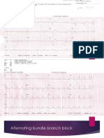 Alternating Bundle Branch Block