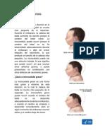 La microcefalia.docx