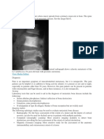 Metastase Bone Disease